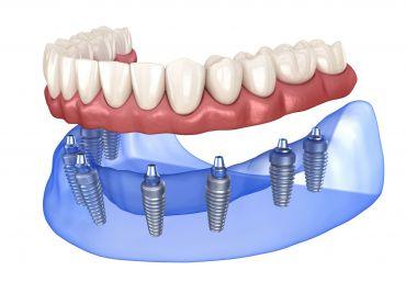 Le protesi dentarie