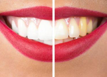 Estetica dentale: le tecniche e gli strumenti per prendersi cura del proprio sorriso