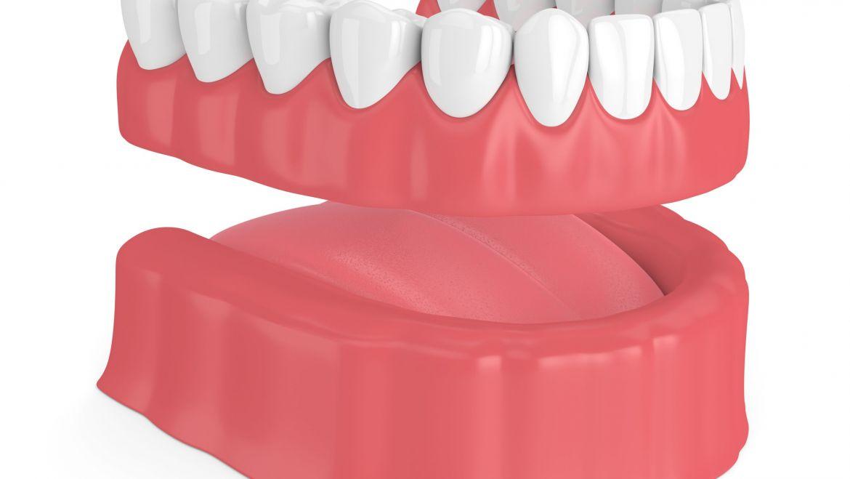 Dentiera addio in un solo giorno