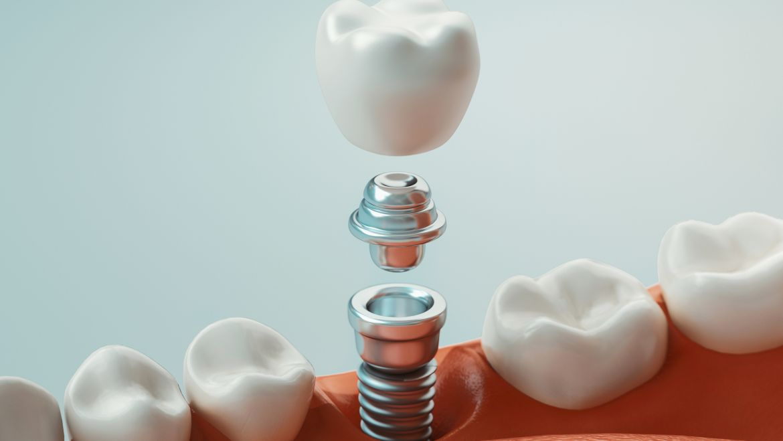 Implantologia bifasica